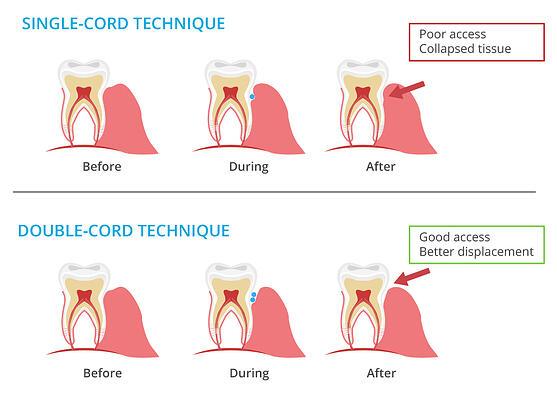 Single Cord Technique and Double Cord Technique - DDS Dental Lab