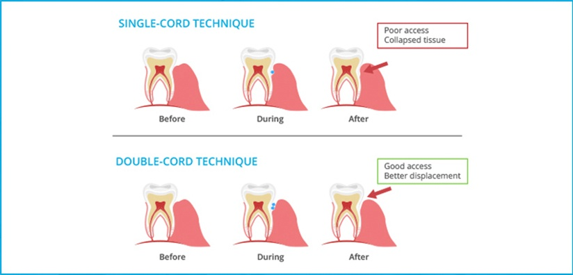 BENEFITS OF THE DOUBLE CORD TECHNIQUE FOR YOUR DENTAL PRACTICE