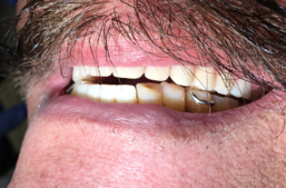 Anterior teeth are too open due to posterior interference
