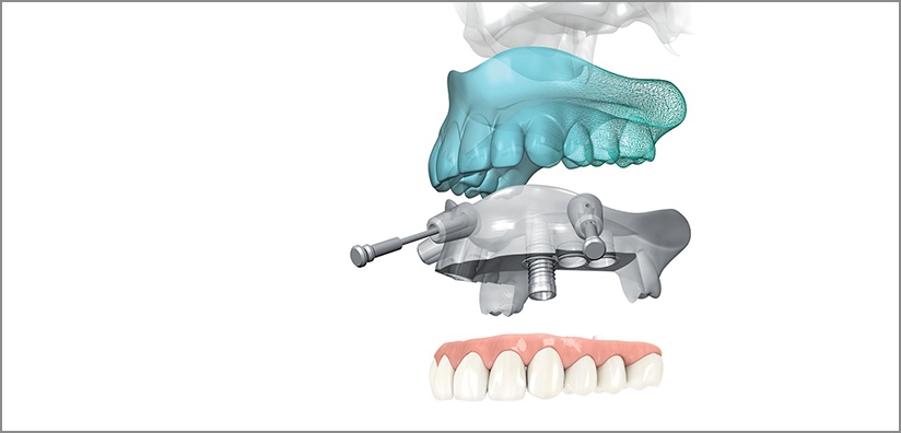 ADVANTAGES AND BENEFITS OF COMPUTER-GUIDED IMPLANT SURGERY