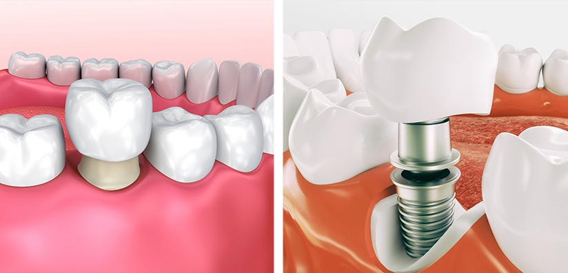 Cement-Retained Implant Restorations Compared to Conventional Crowns and Bridges