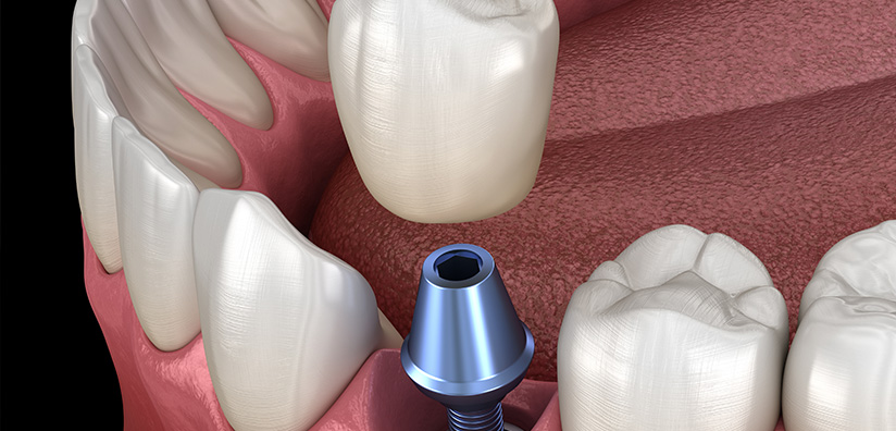 DENTAL IMPLANTS AFTER ORAL CANCER TREATMENT