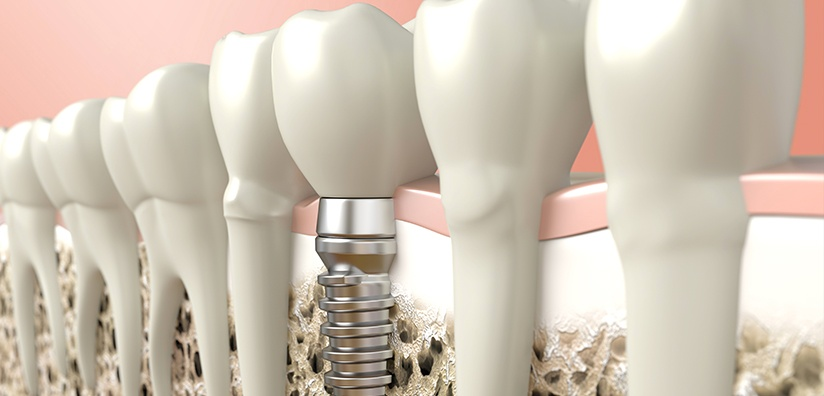HOW TO AVOID PERI-IMPLANT DISEASE.jpg