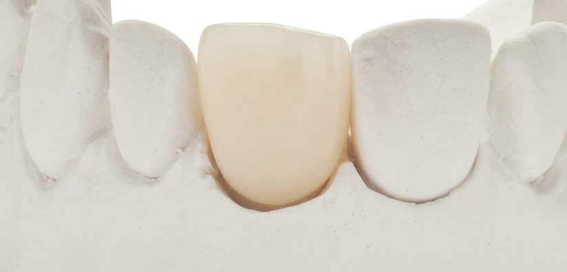 LITTLE CHANGES THAT WILL MAKE A BIG DIFFERENCE WHEN PLACING ZIRCONIA DENTAL CROWNS