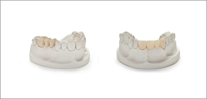 PFM VS Zirconia: Which Material is Better?
