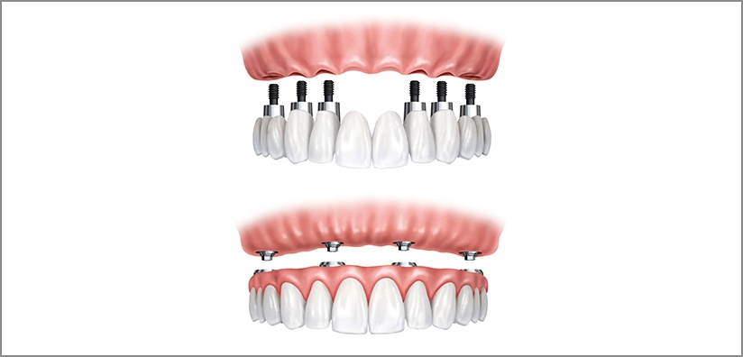 WHEN TO RECOMMEND IMPLANT OVERDENTURES