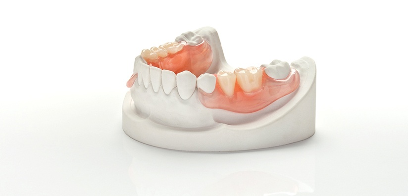 THE BEST PARTIAL DENTURE TECHNIQUE - STEP BY STEP