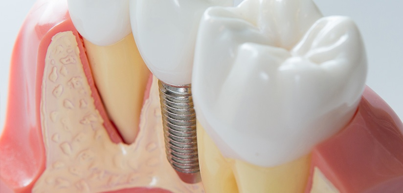 Bone Grafting Materials in Implant Dentistry