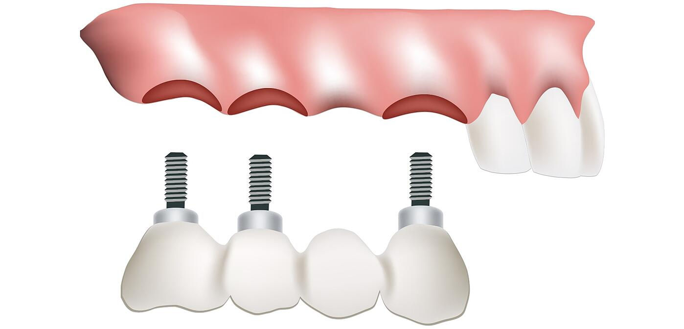 FIXED IMPLANT BRIDGES Treatment Details