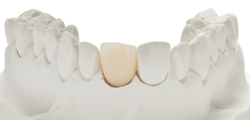 HIGH TRANSLUCENT ZIRCONIA: Benefits, Wear Properties and Selection Process