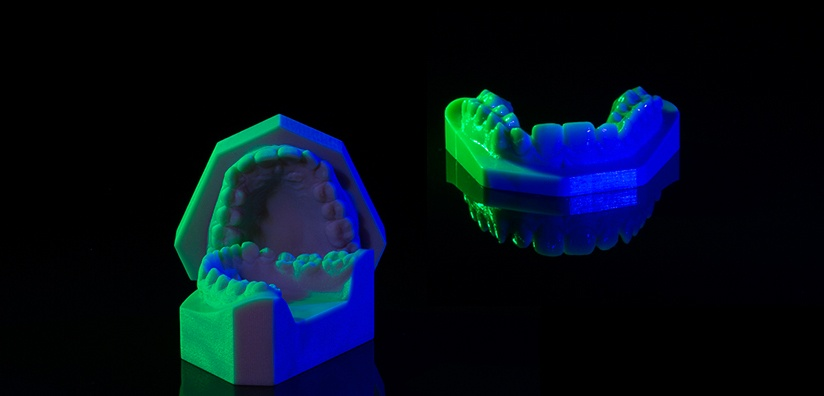 STUDY MODELS IN ORTHODONTICS