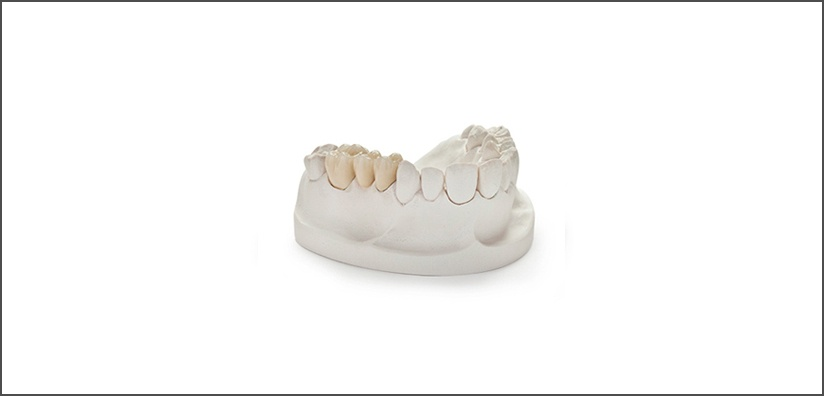 TOOTH PREPARATION GUIDELINES FOR PFM CROWNS