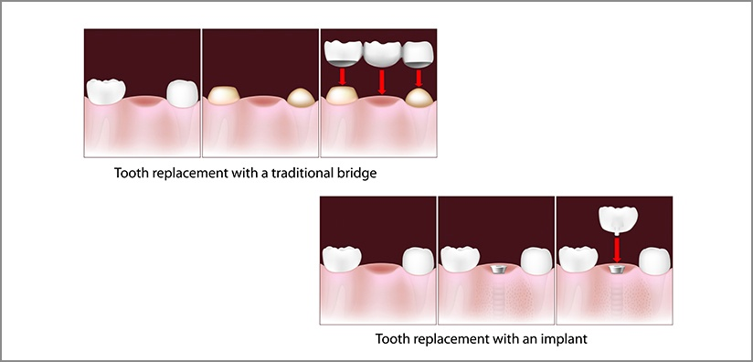 TOOTH REPLACEMENT: Implant versus Bridge
