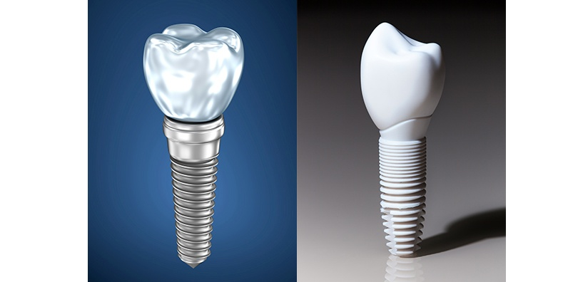 ZIRCONIA VS TITANIUM DENTAL IMPLANTS