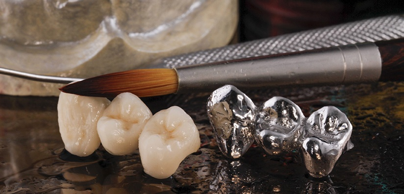 Materials within the Dental Industry | DDS Dental Lab