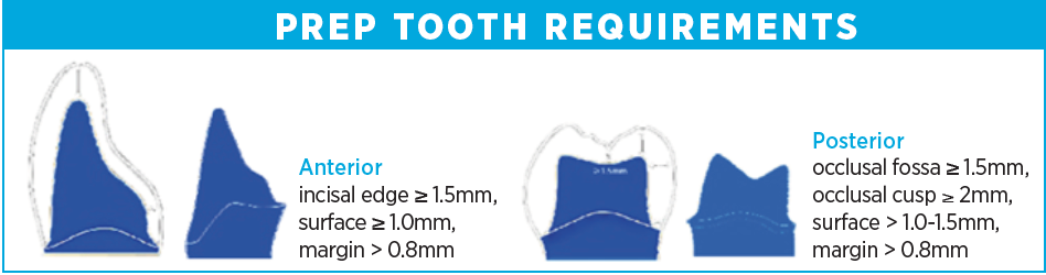 PREP TOOTH REQUIREMENTS