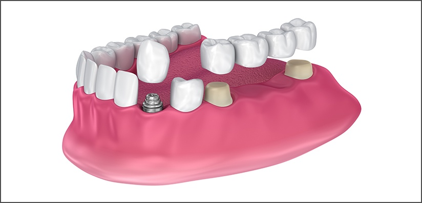 TIPS FOR ALL CERAMIC CROWN CEMENTATION