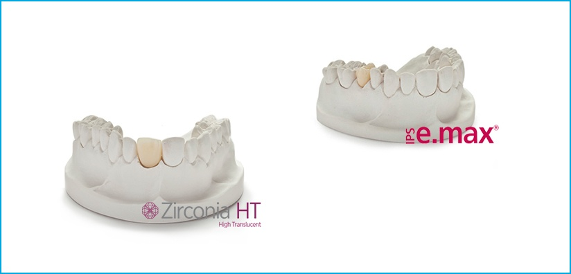 Zirconia and IPS e.max Restorations  Superior Esthetics for Your Patients