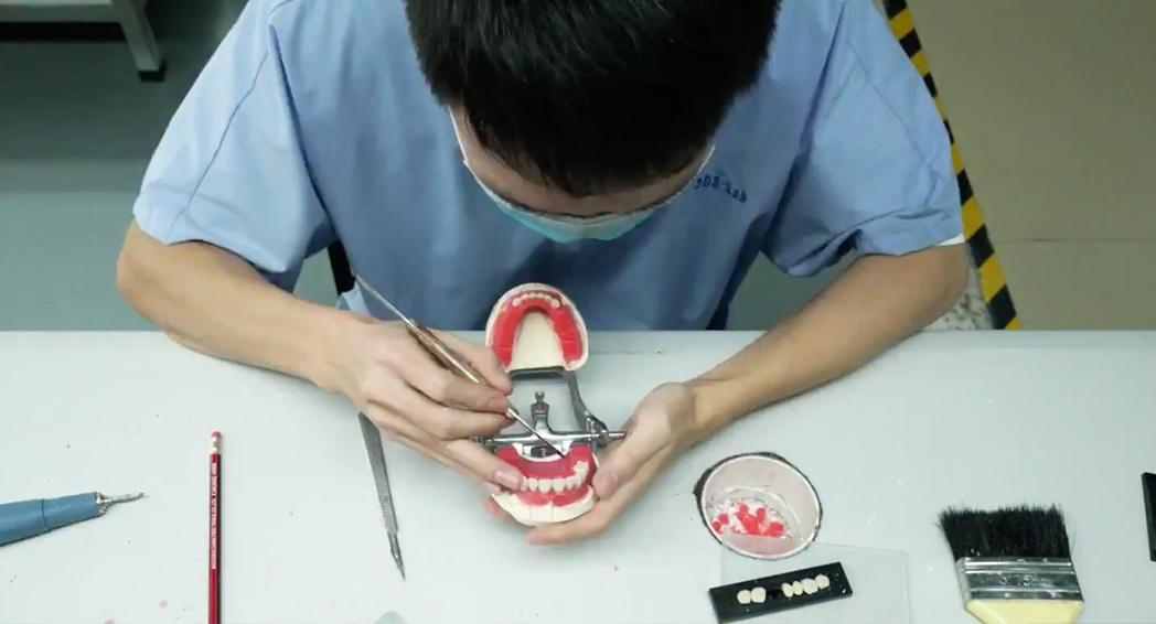 Denture Fabrication - Tooth Set-Up