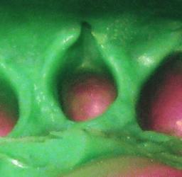 Dental Impression: RATING 2