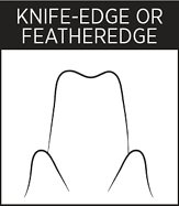 Dental Margin - Knife-Edge Or Featheredge
