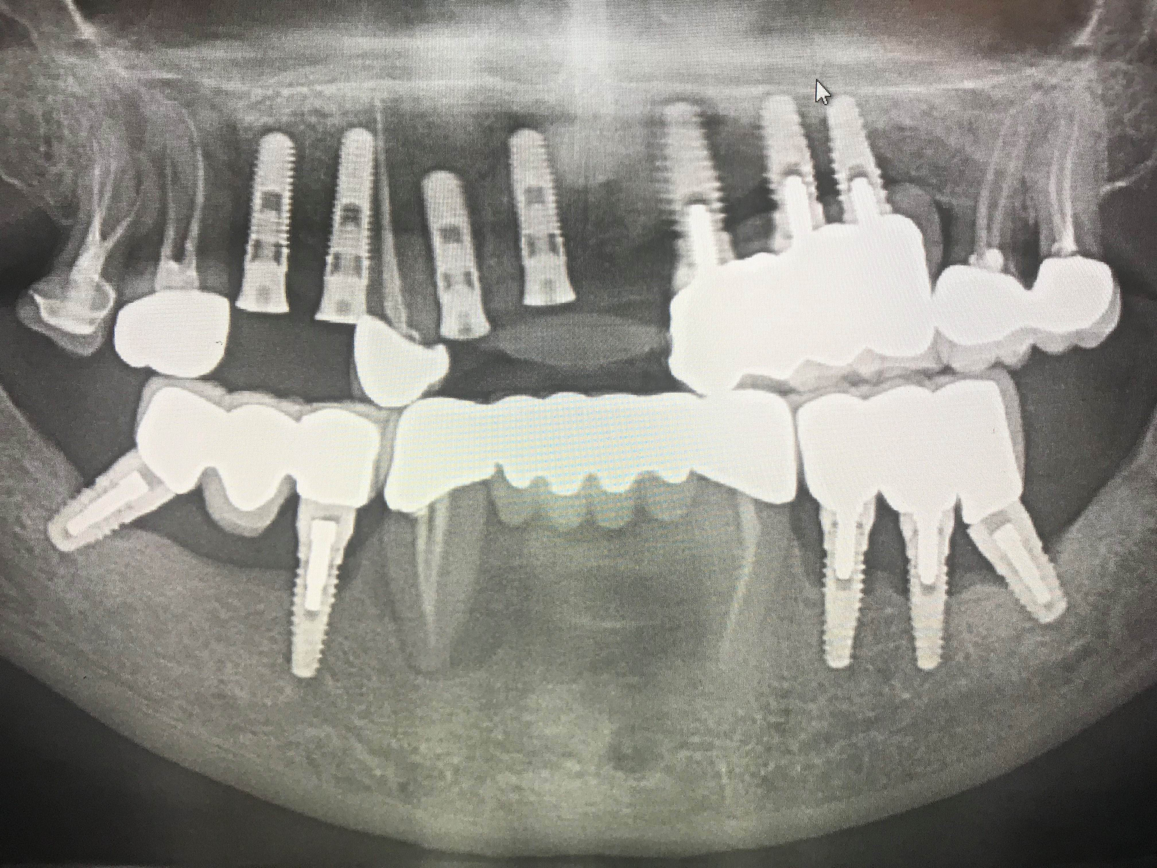 Patient Radiograph