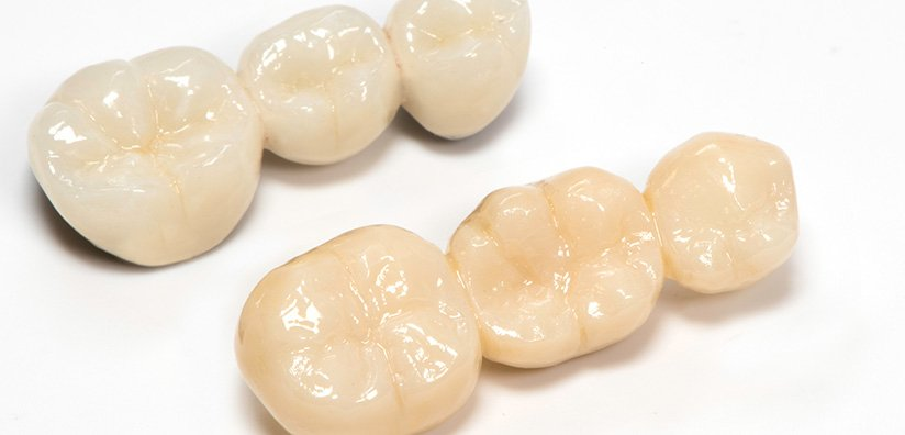 5 SIGNS YOU SHOULD USE ZIRCONIA DENTAL CROWNS INSTEAD OF PFM