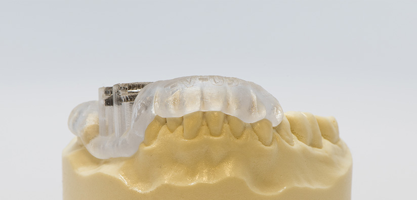 AN INTRODUCTION TO SURGICAL GUIDES IN DENTISTRY