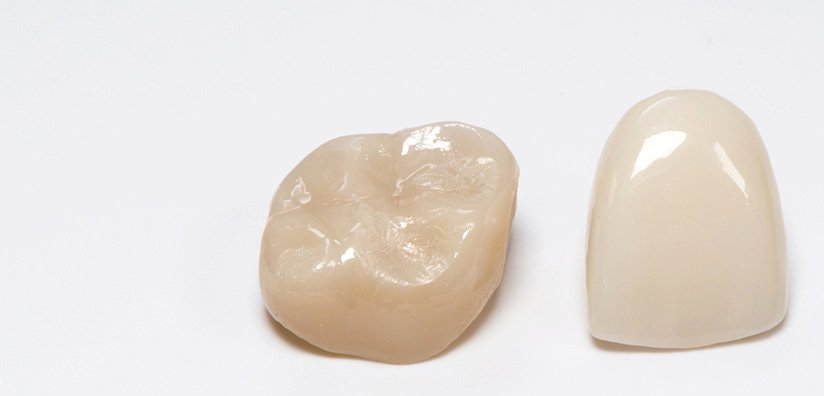 HOW TO RESOLVE FITTING-ISSUES WITH ZIRCONIA CROWNS