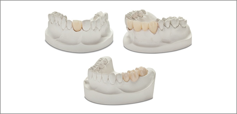 ACHIEVE THE BEST POSSIBLE RESULTS USING ZIRCONIA: Crowns, Bridges, and Dental Implants