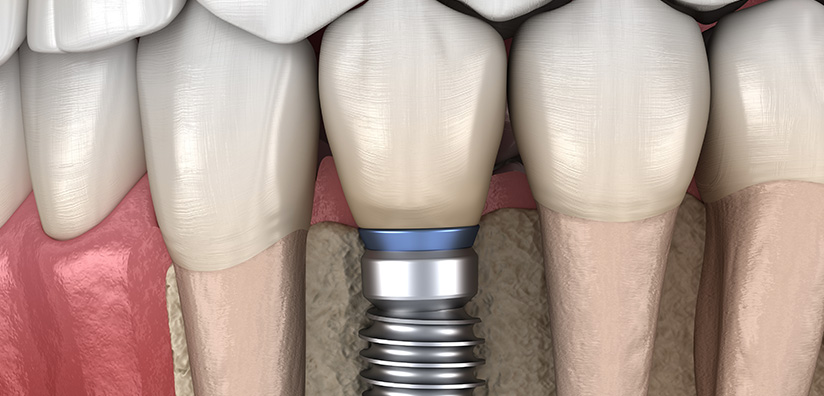 LEARN HOW NERVE ELECTRICAL STIMULATION ENHANCES OSSEOINTEGRATION OF IMPLANTS