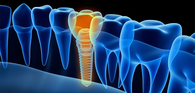 MINIMIZING THE RISK OF DENTAL IMPLANT COMPLICATIONS