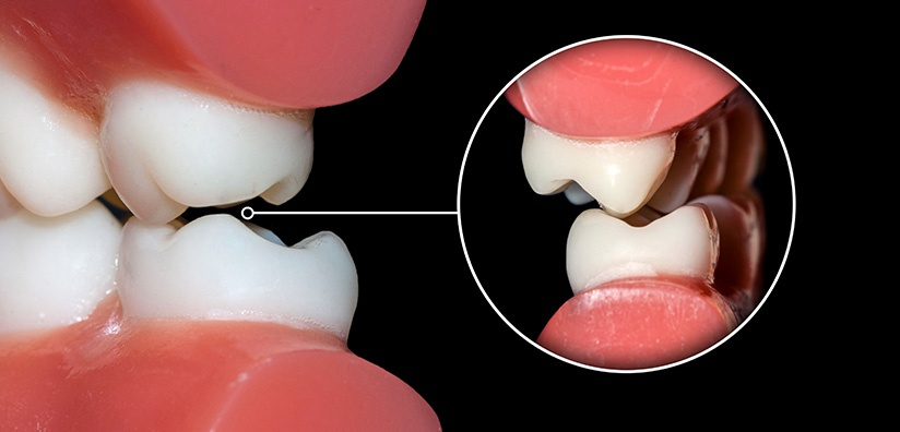 MOST COMMON DENTAL IMPRESSION ERRORS AND HOW TO AVOID THEM