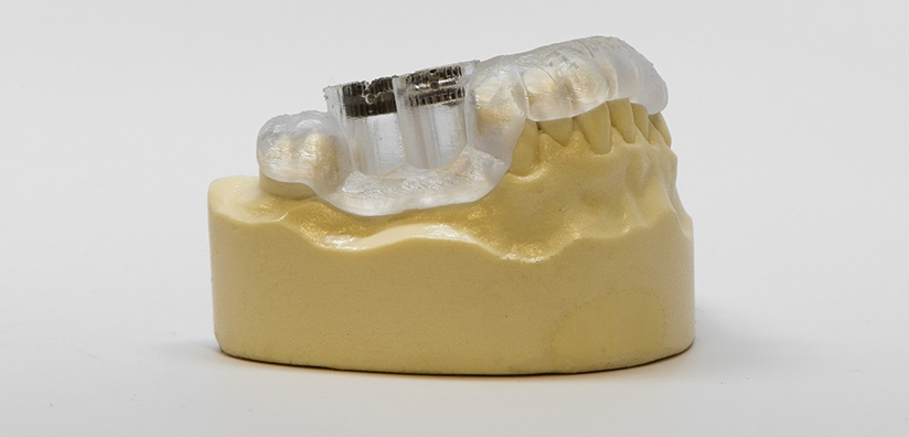 USING CADCAM SURGICAL GUIDES FOR A MORE SUCCESSFUL IMPLANT SURGERY