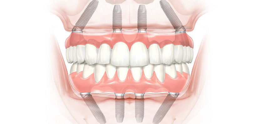 "WHY ""All-On-Four"" DENTAL IMPLANT PROCEDURES ARE EASIER THAN YOU MIGHT THINK"