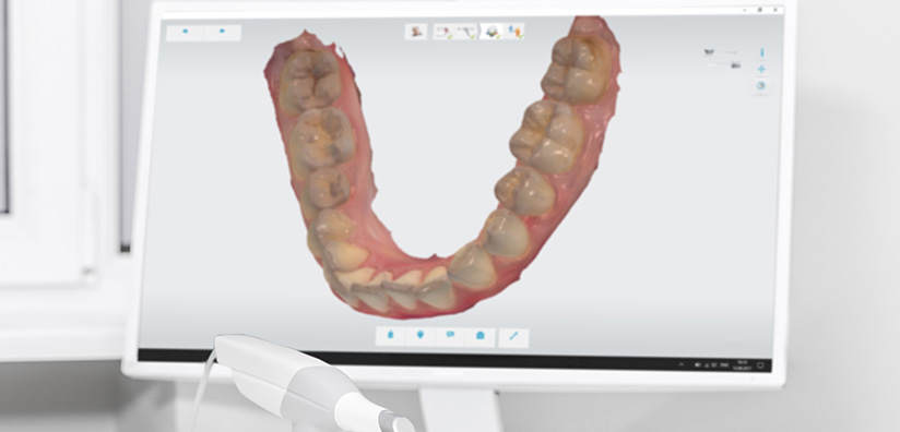 WHY WE RECOMMEND DENTAL DIGITAL IMPRESSIONS