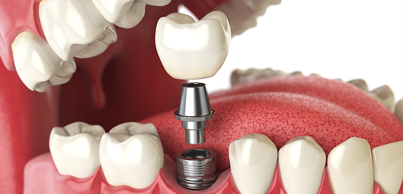 THE BASIC CONCEPT OF DENTAL IMPLANTS