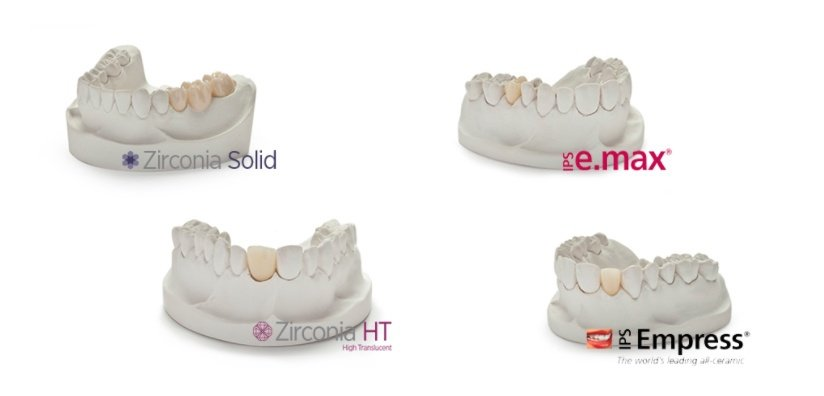 TYPES OF ALL-CERAMIC CROWNS