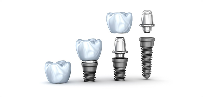 SCREW-RETAINED IMPLANT CROWN
