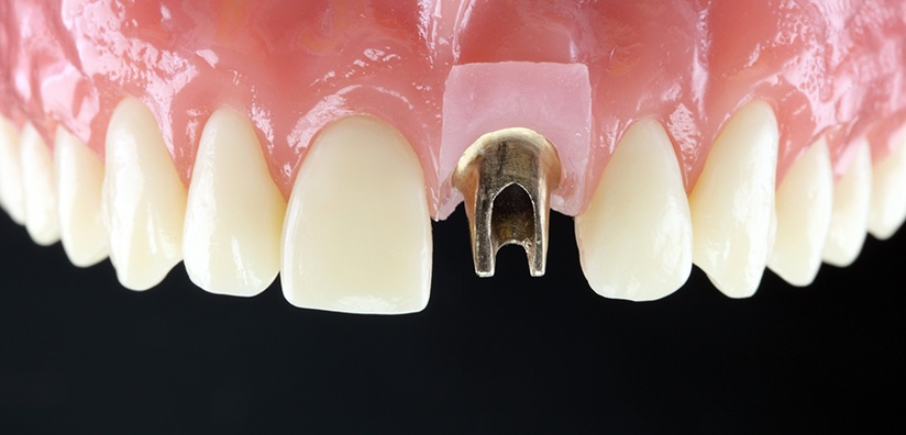 TYPES OF CROWNS TO USE WHEN PLACING A CUSTOM ABUTMENT