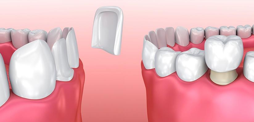 Porcelain Veneers Versus Dental Crowns
