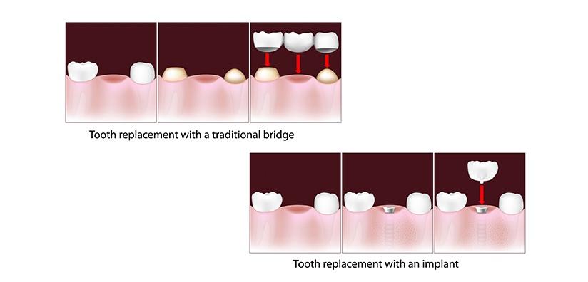 TOOTH REPLACEMENT: Implant versus Bridge