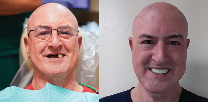 PATIENT SPOTLIGHT: Transformative screw-retained bridge
